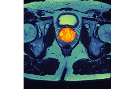 Irm cancer prostate